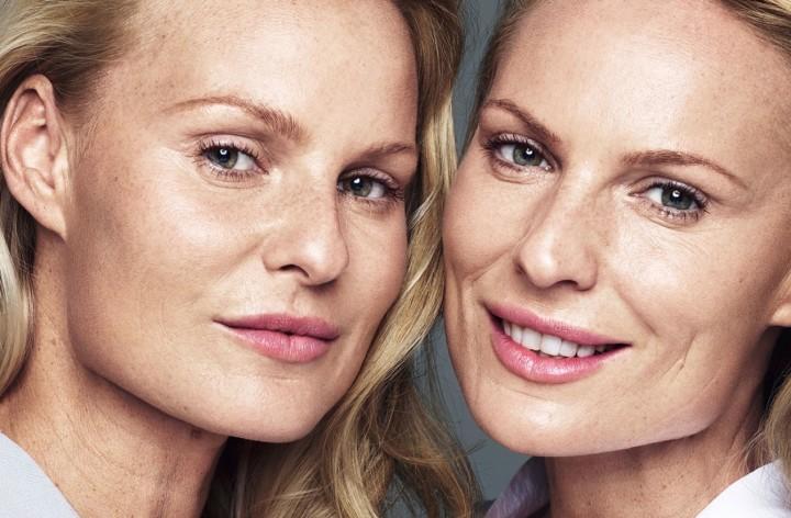 La medicina estetica nella vita reale: la prova di Galderma e l'esperimento dei gemelli